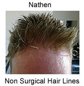 Hair Replacement For Men image