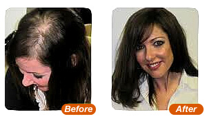 Hair Replacement For Women
